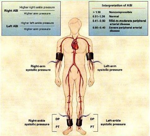 تصویر 1. اندازهگیری اندکس مچ پا- بازویی