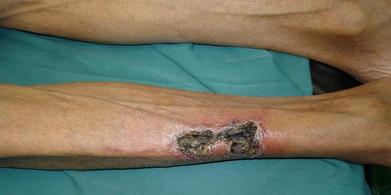 تصویر 2. اولسر ایسکمیک ساق بهدنبال ترومای کوچک
