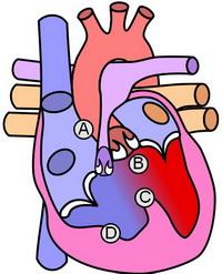 1. ب. قلب مبتلا به تترالوژی فالوت