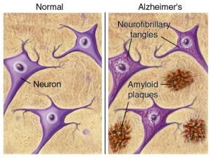 تصویر 1. پلاکهای آمیلوئید و تارهای درهمتنیده شده در مغز بیمار آلزایمری در مقایسه با مغز سالم