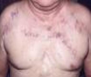 تصویر 1. متورم شدن وریدهای زیرجلدی در توراکس و گردن بیمار مبتلا به سندروم SVC