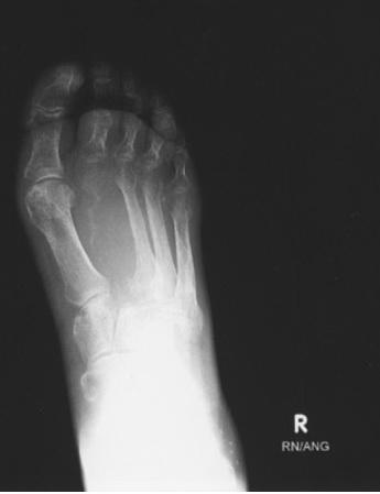 تصویر 1. رادیوگرافی پای راست بیمار مبتلا به متاستاز استخوان متاتارس دوم ناشی از ترانزیشنال سل کارسینوم مثانه