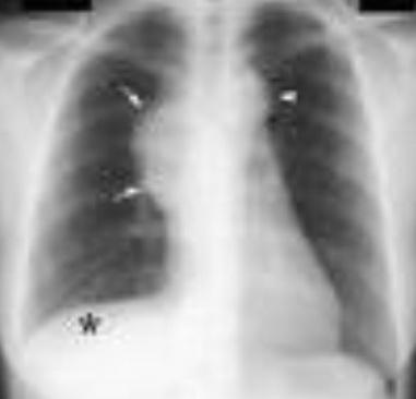 تصویر 2. پهنشدگی (Widening) مدیاستن و پلورال افیوژن در بیمار مبتلا به سندروم SVC