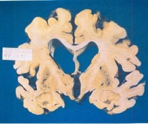 تصویر 3. یک مغز مبتلا به آلزایمر