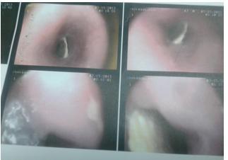 تصویر 3. استخوان مرغ در آندوسکوپی