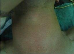 تصویر 5. قرمزی و تورم شدید در گردن در اثر دستکاری و پارگی مری