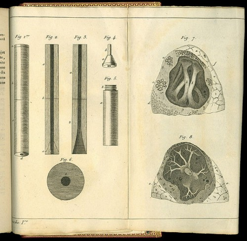 614px-Rene-Theophile-Hyacinthe_Laennec_(1781-1826)_Drawings_stethoscope_and_lungs
