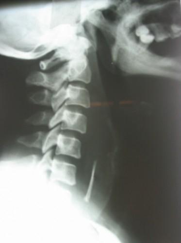 تصویر 6. رادیوگرافی گردن با جسم خارجی در مری گردنی