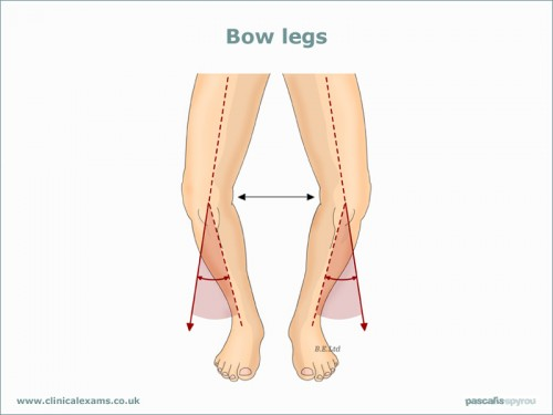 Bow-legs-web-large(800x600)