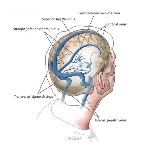 آناتومی وریدهای مغزی