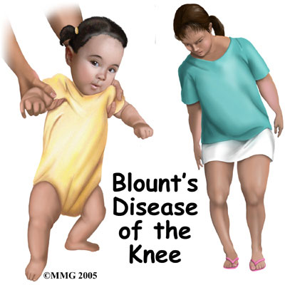child_knee_blounts_intro01