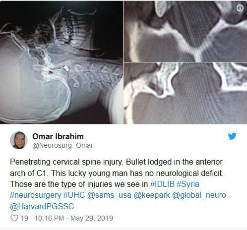 حساب توئیتری دکتر عمر ابراهیم: آسیب نافذ نخاع گردنی. گلوله در قوس قدامی مهره اول گردن گیر افتاده است. این مرد جوان خیلی خوششانس بود و هیچ علایم عصبی نداشت.